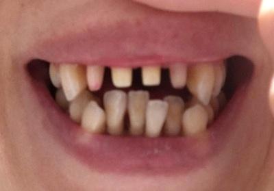 【閲覧注意!!】第七話:はじめて歯を削る日