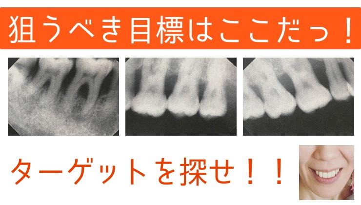 第二十話:はじめての虫歯治療(根管治療・ファイバーコア)